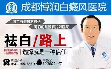 颈部白癜风的发病原因有哪些?