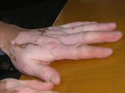 成都双手出现白癜风需要如何治疗
