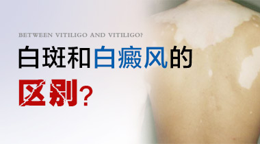 <a href=https://www.ttz-china.com/ target=_blank class=infotextkey>成都治疗白癜风</a>便宜的的医院?身上长得白斑是什么呢?