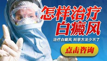 成都那个医院治疗白癜风?白癜风我们要怎么样护理呢?