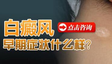 成都治疗白斑医院排名?白癜风病情好转的症状?