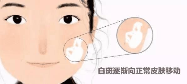 女性治疗白癜风有什么好方法吗